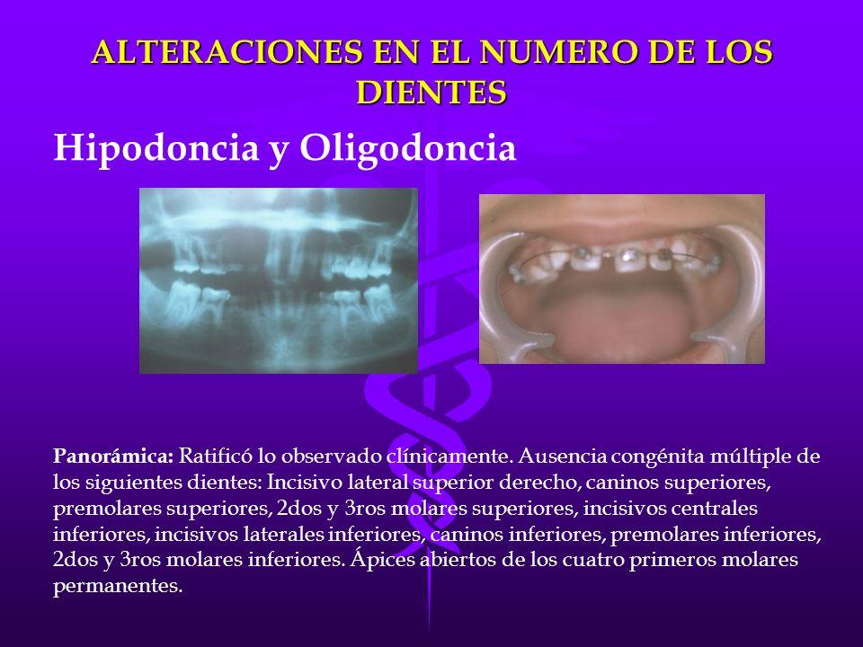 Panorámica: Ratificó lo observado clínicamente. Ausencia congénita múltiple de los siguientes dientes: Incisivo lateral superior derecho, caninos supe