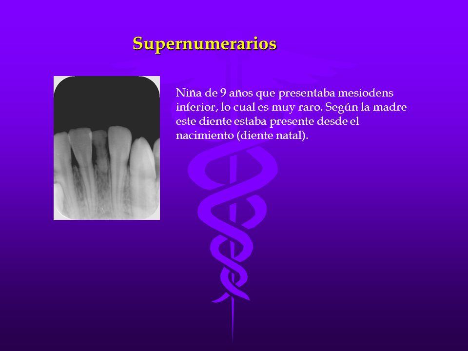 Supernumerarios Niña de 9 años que presentaba mesiodens inferior, lo cual es muy raro. Según la madre este diente estaba presente desde el nacimiento
