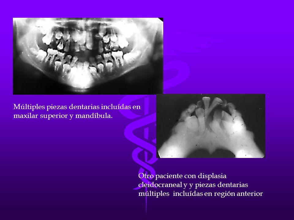 Múltiples piezas dentarias incluídas en maxilar superior y mandíbula. Otro paciente con displasia cleidocraneal y y piezas dentarias múltiples incluíd