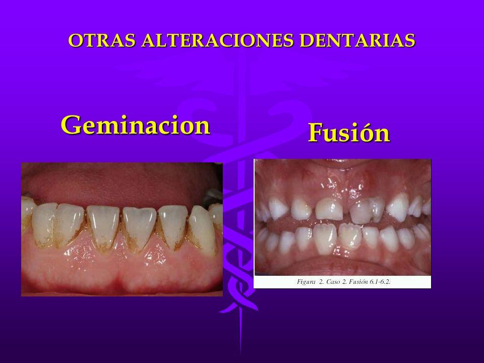 Fusión OTRAS ALTERACIONES DENTARIAS Geminacion