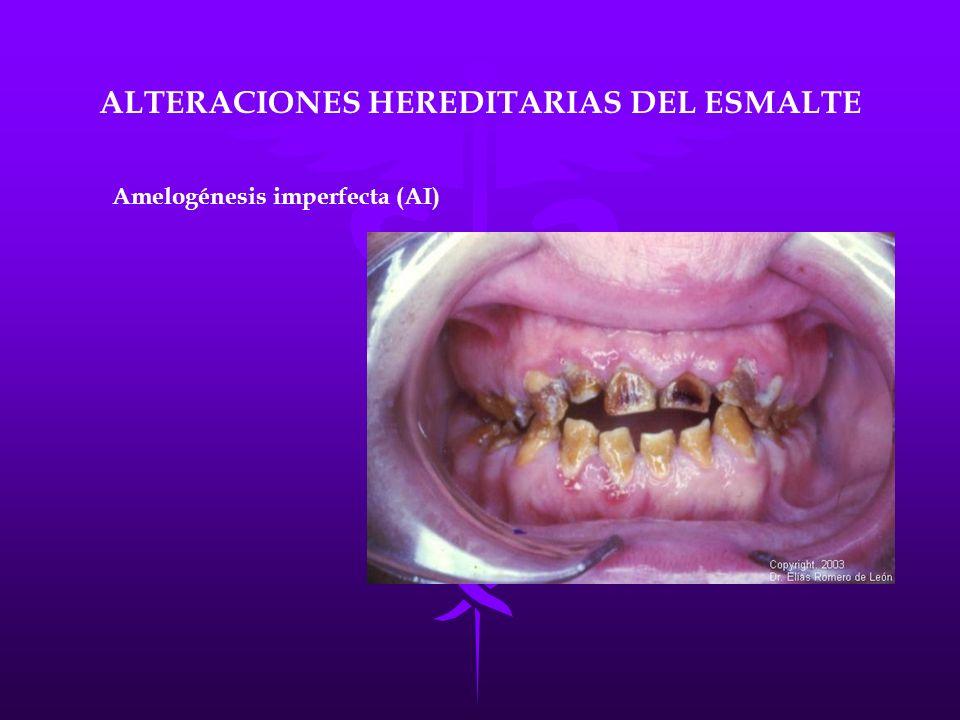 ALTERACIONES HEREDITARIAS DEL ESMALTE Amelogénesis imperfecta (AI)