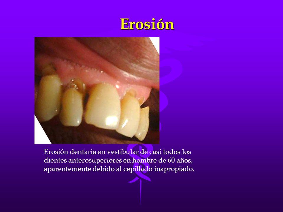 Erosión Erosión dentaria en vestibular de casi todos los dientes anterosuperiores en hombre de 60 años, aparentemente debido al cepillado inapropiado.