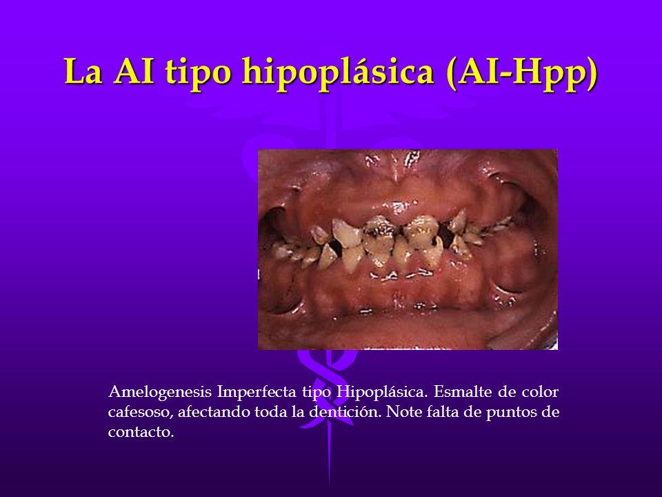 La AI tipo hipoplásica (AI-Hpp) Amelogenesis Imperfecta tipo Hipoplásica. Esmalte de color cafesoso, afectando toda la dentición. Note falta de puntos