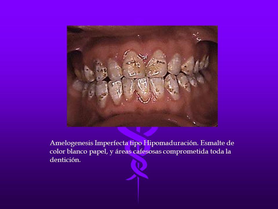 Amelogenesis Imperfecta tipo Hipomaduración. Esmalte de color blanco papel, y áreas cafesosas comprometida toda la dentición.