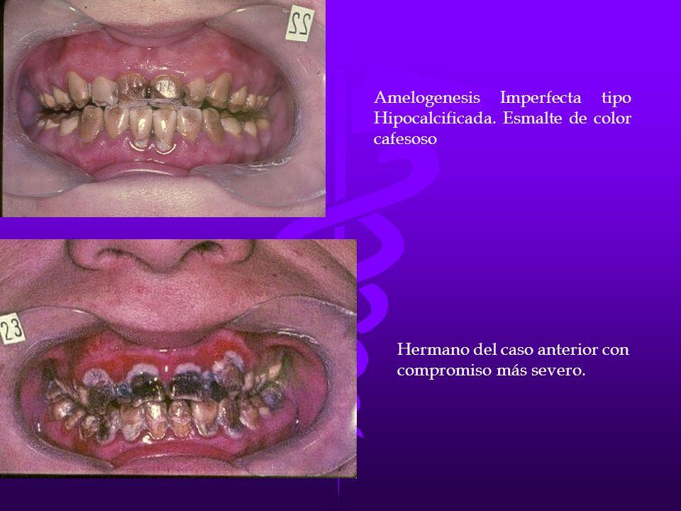 Amelogenesis Imperfecta tipo Hipocalcificada. Esmalte de color cafesoso Hermano del caso anterior con compromiso más severo.