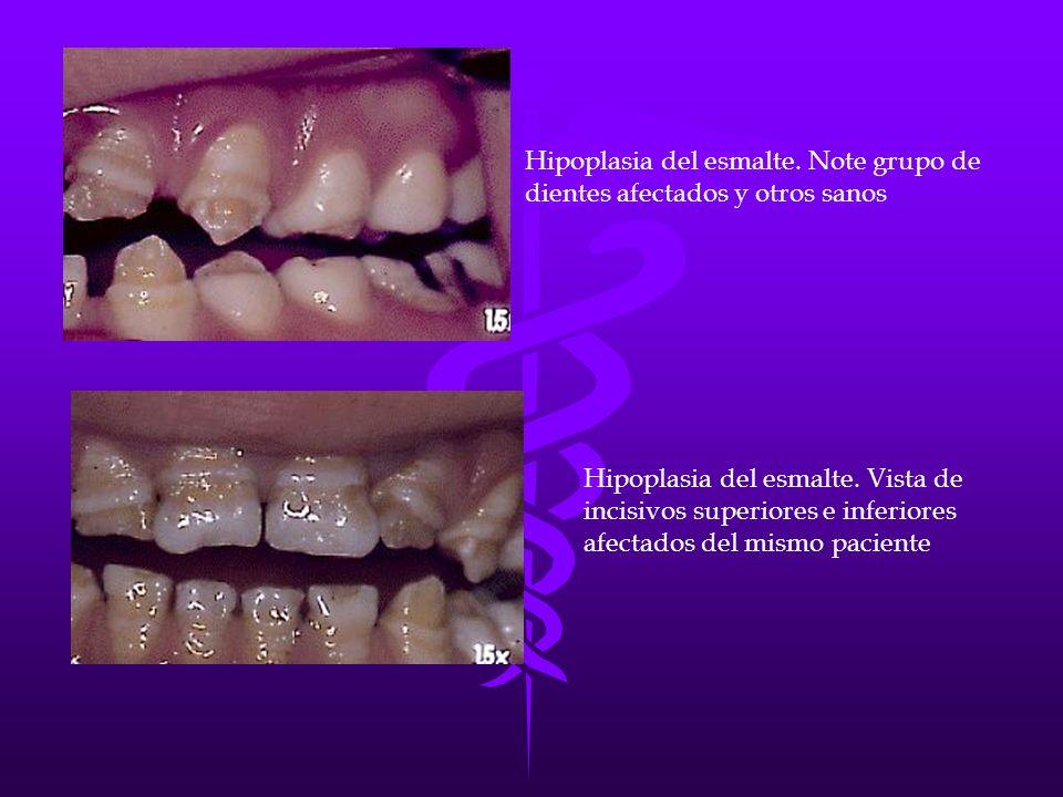 Hipoplasia del esmalte. Note grupo de dientes afectados y otros sanos Hipoplasia del esmalte. Vista de incisivos superiores e inferiores afectados del