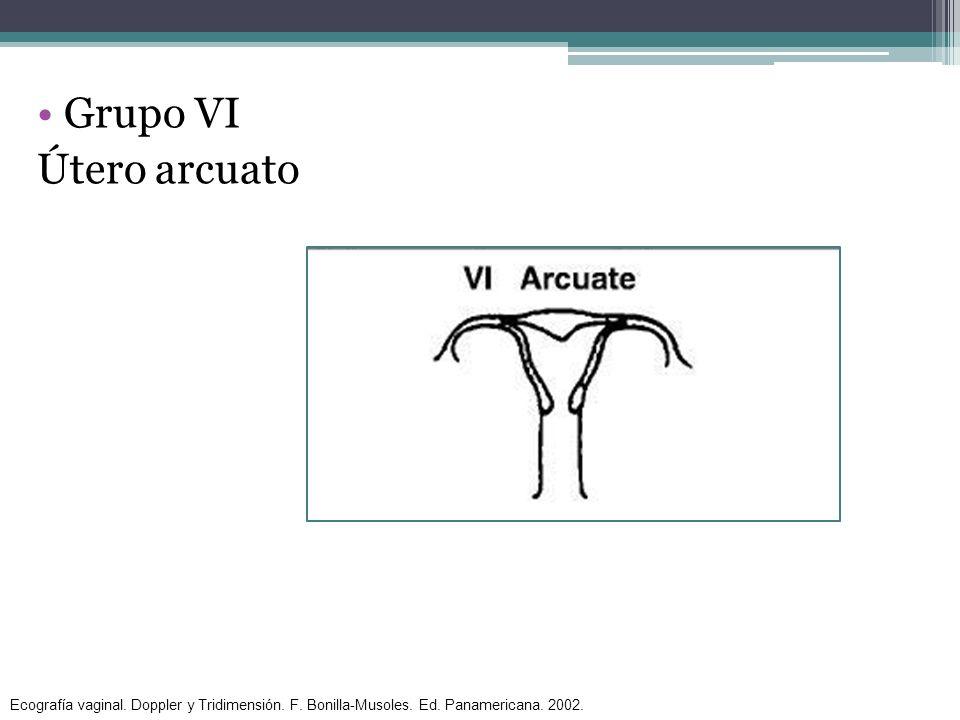 Grupo VI Útero arcuato Ecografía vaginal. Doppler y Tridimensión. F. Bonilla-Musoles. Ed. Panamericana. 2002.