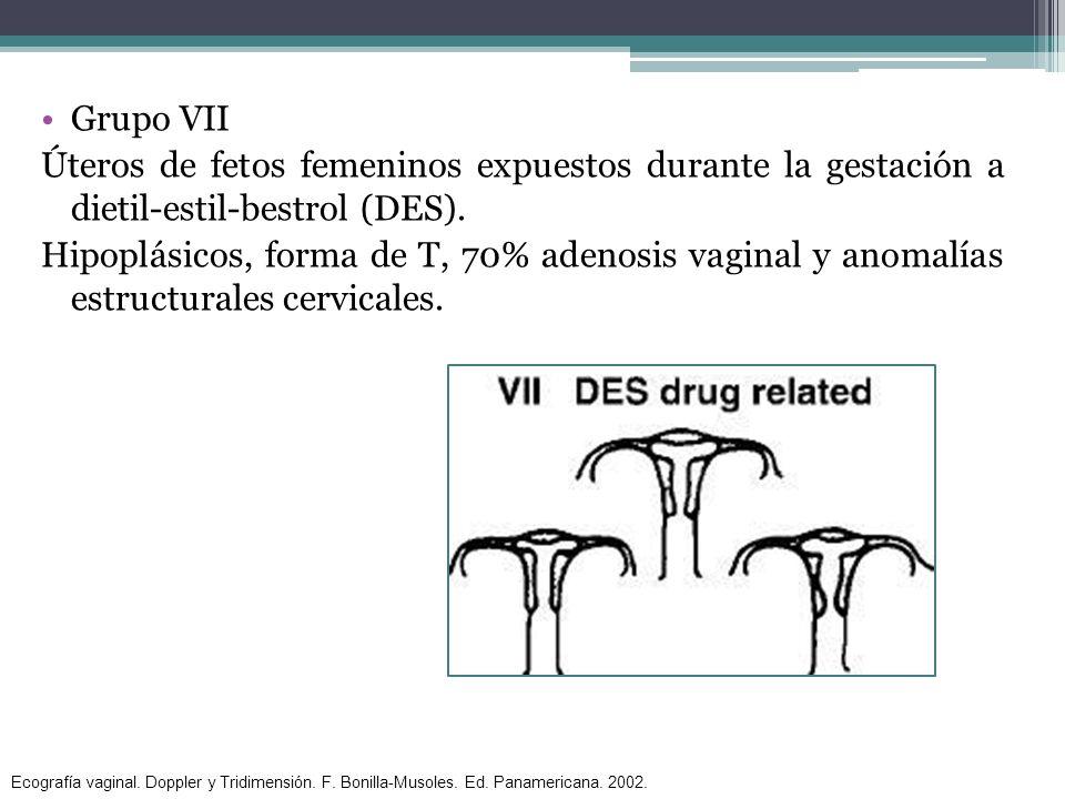 Grupo VII Úteros de fetos femeninos expuestos durante la gestación a dietil-estil-bestrol (DES). Hipoplásicos, forma de T, 70% adenosis vaginal y anom