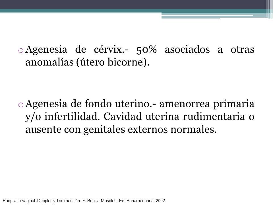 o Agenesia de cérvix.- 50% asociados a otras anomalías (útero bicorne). o Agenesia de fondo uterino.- amenorrea primaria y/o infertilidad. Cavidad ute
