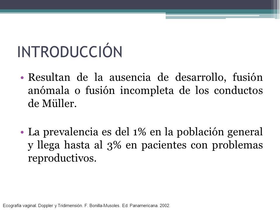 INTRODUCCIÓN Resultan de la ausencia de desarrollo, fusión anómala o fusión incompleta de los conductos de Müller. La prevalencia es del 1% en la pobl