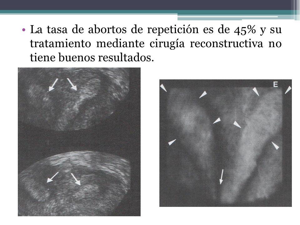 La tasa de abortos de repetición es de 45% y su tratamiento mediante cirugía reconstructiva no tiene buenos resultados.