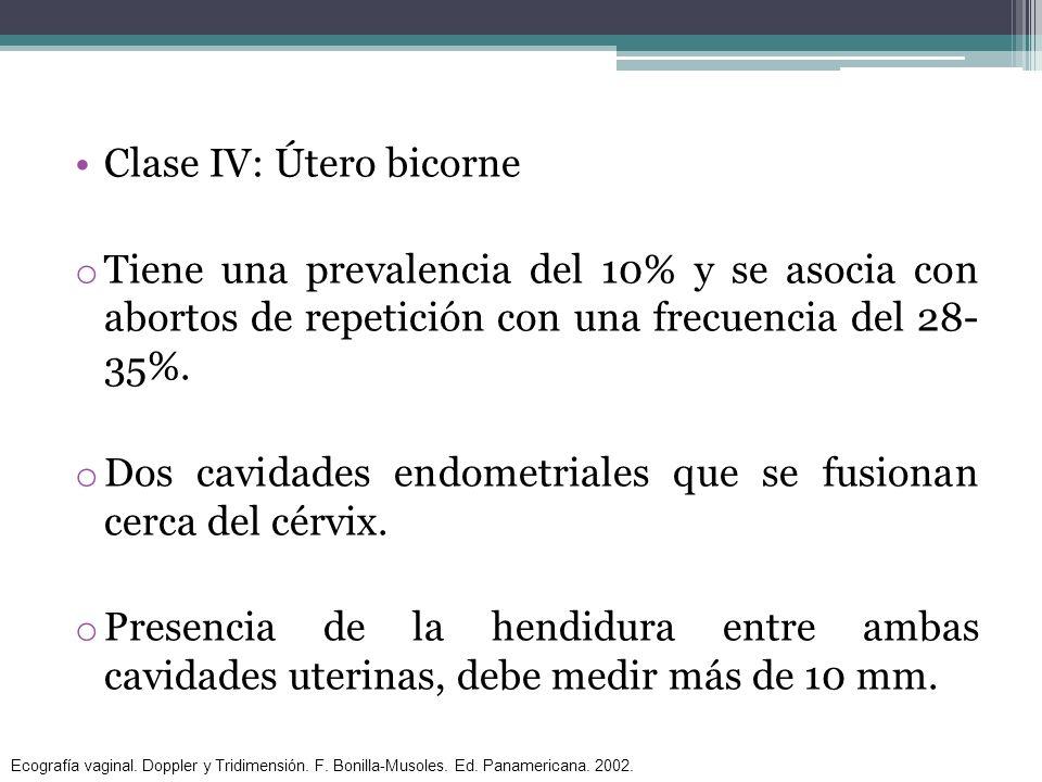 Clase IV: Útero bicorne o Tiene una prevalencia del 10% y se asocia con abortos de repetición con una frecuencia del 28- 35%. o Dos cavidades endometr
