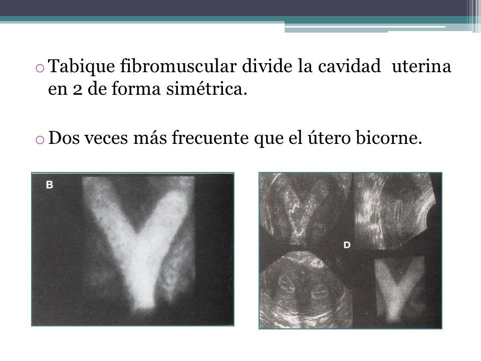 o Tabique fibromuscular divide la cavidad uterina en 2 de forma simétrica. o Dos veces más frecuente que el útero bicorne.