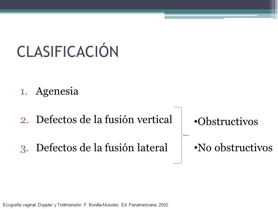 CLASIFICACIÓN 1.Agenesia 2.Defectos de la fusión vertical 3.Defectos de la fusión lateral Obstructivos No obstructivos Ecografía vaginal. Doppler y Tr