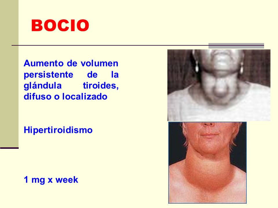 BOCIO Aumento de volumen persistente de la glándula tiroides, difuso o localizado Hipertiroidismo 1 mg x week