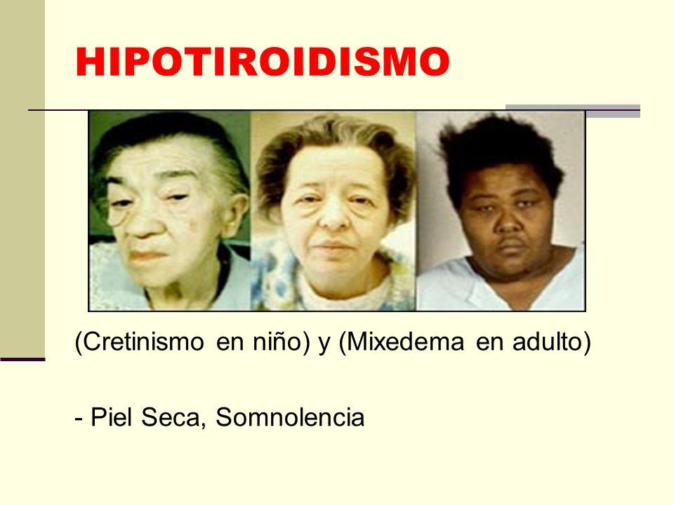 HIPOTIROIDISMO (Cretinismo en niño) y (Mixedema en adulto) - Piel Seca, Somnolencia