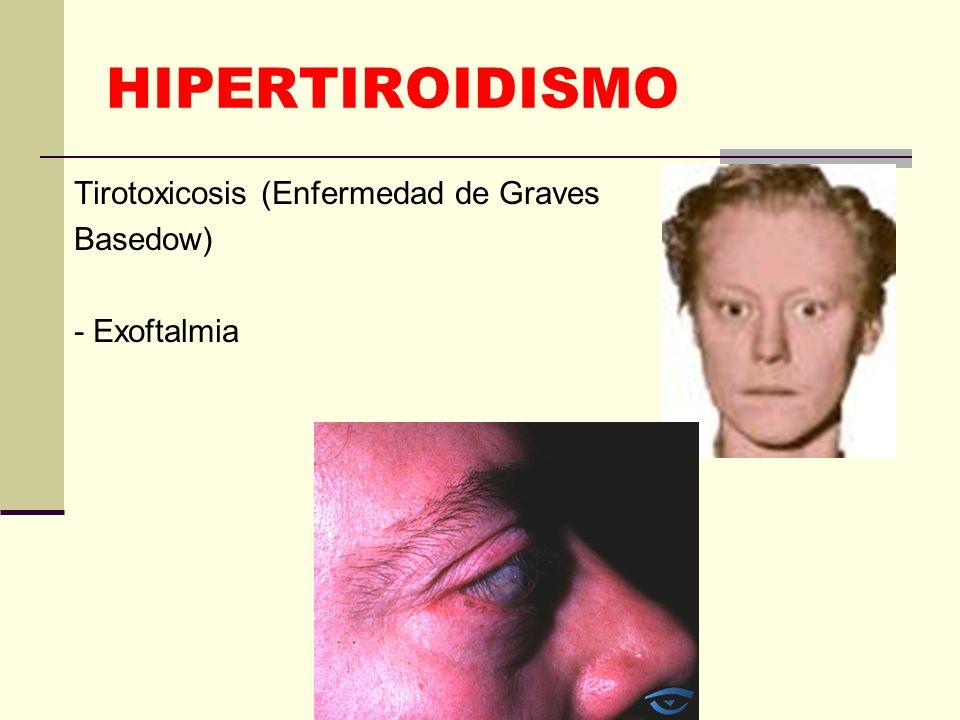 HIPERTIROIDISMO Tirotoxicosis (Enfermedad de Graves Basedow) - Exoftalmia
