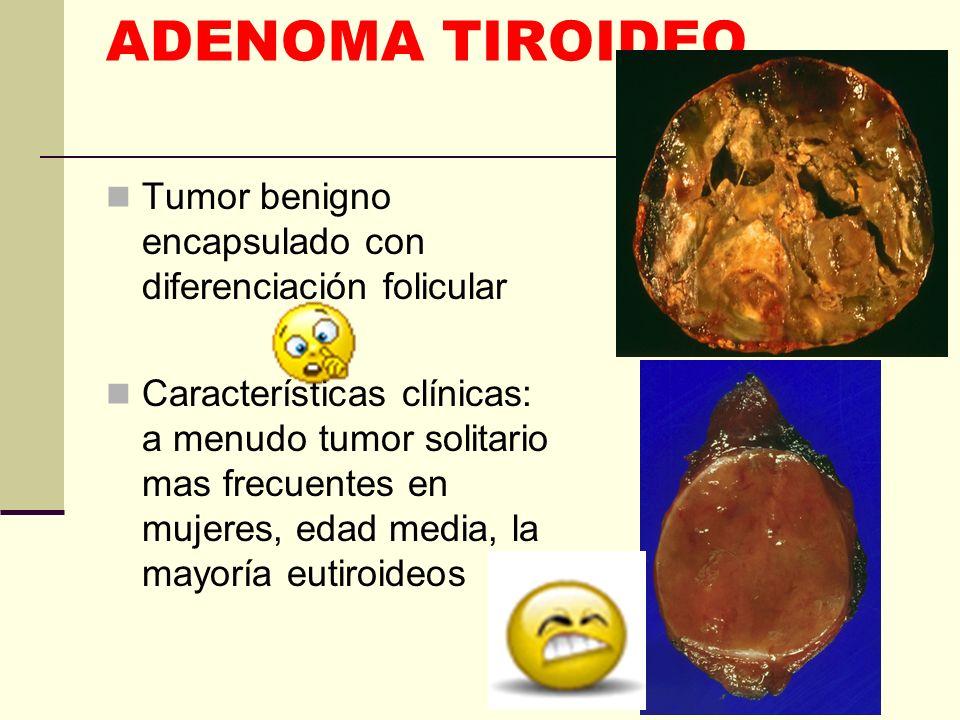 ADENOMA TIROIDEO Tumor benigno encapsulado con diferenciación folicular Características clínicas: a menudo tumor solitario mas frecuentes en mujeres,