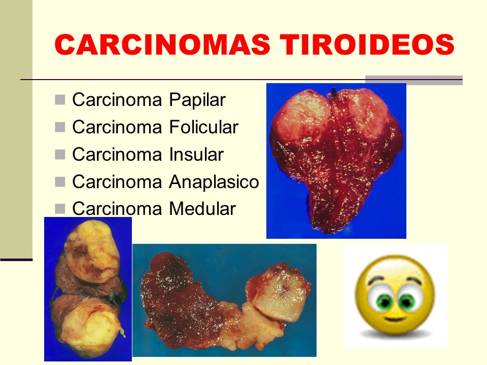 CARCINOMAS TIROIDEOS Carcinoma Papilar Carcinoma Folicular Carcinoma Insular Carcinoma Anaplasico Carcinoma Medular
