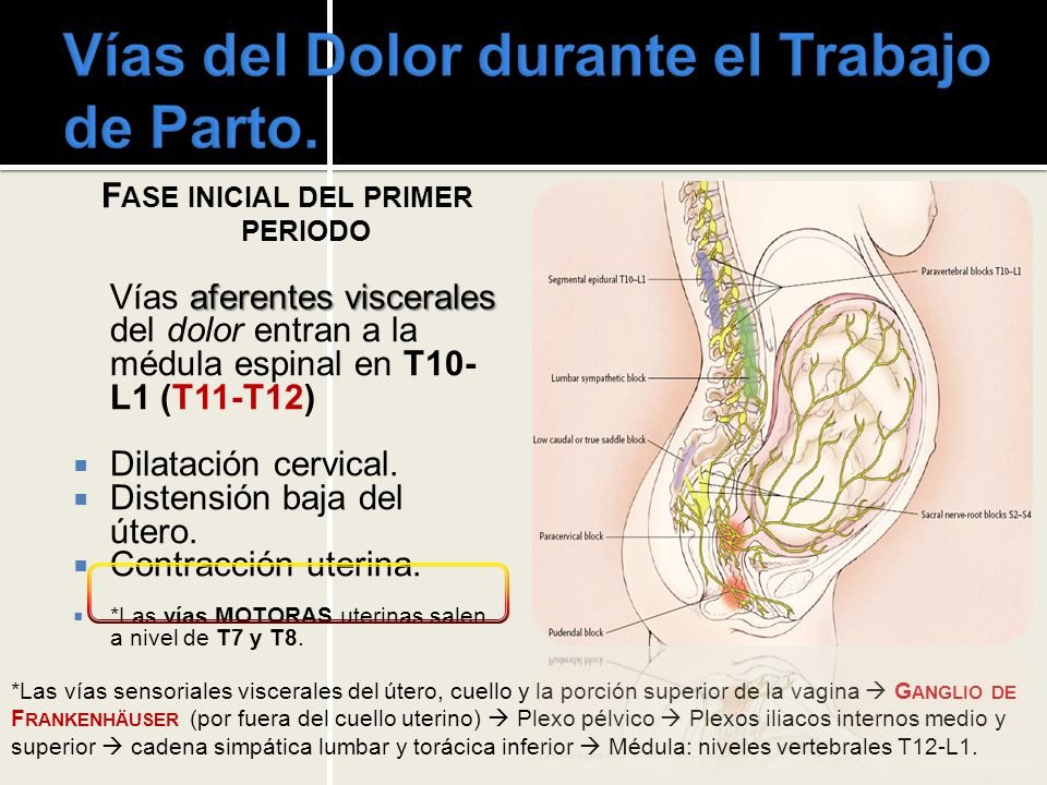 Anestesia Regional: B LOQUEO E PIDURAL E PIDURAL SIN BLOQUEO MOTOR : + 0.125% Bupivacaína + dosis baja de Fentanilo.