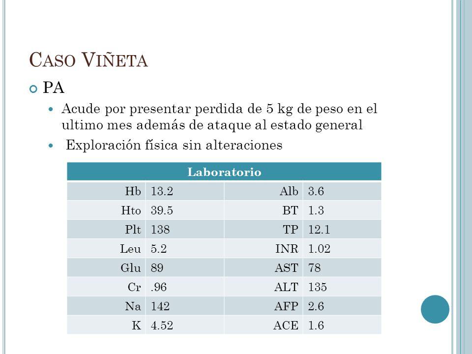 C ASO V IÑETA US abdominal de control mostro una masa hepática de 3 cm en lóbulo derecho TAC abdominal y MRI mostraron una masa de 4 cm en lóbulo hepático derecho además de múltiples nódulos quísticos