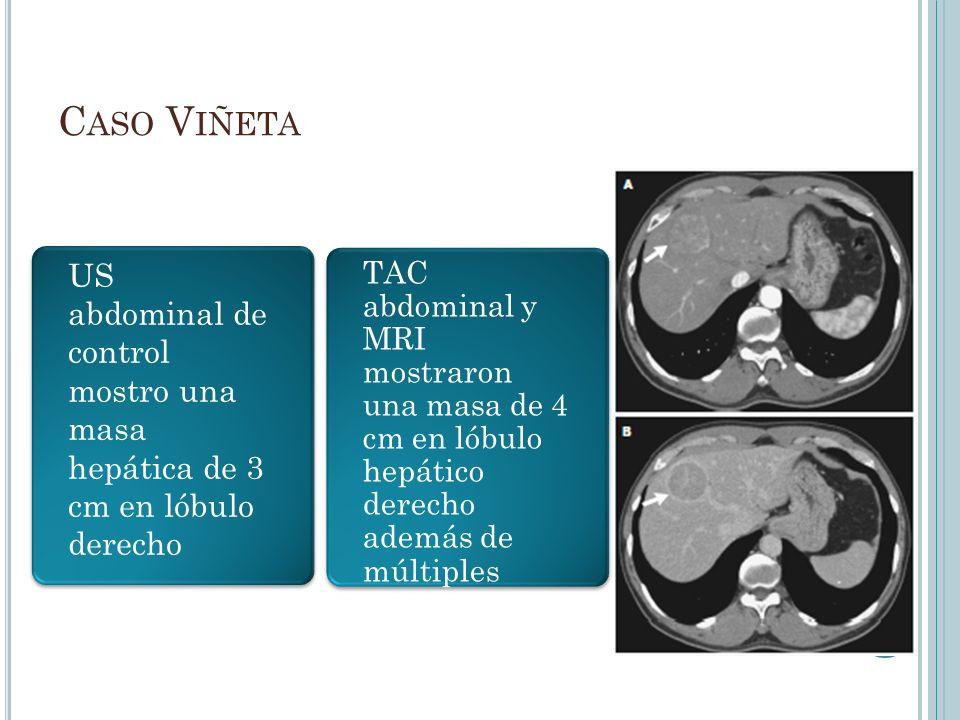 C ASO V IÑETA US abdominal de control mostro una masa hepática de 3 cm en lóbulo derecho TAC abdominal y MRI mostraron una masa de 4 cm en lóbulo hepá