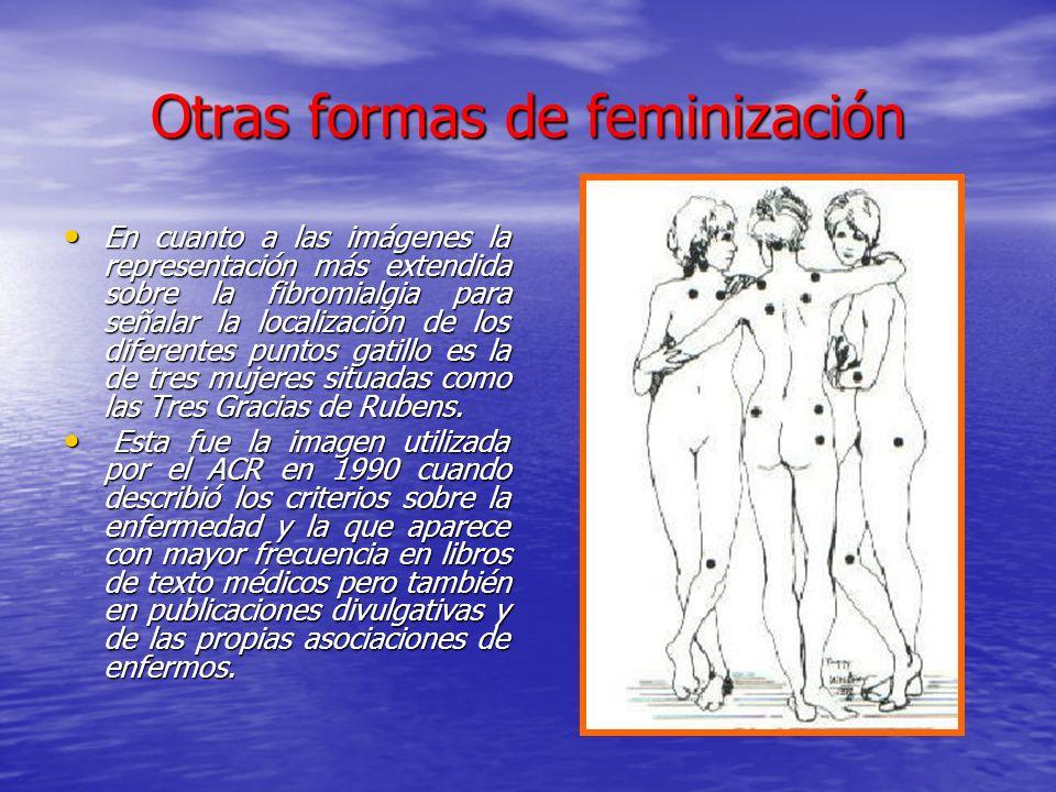 Otras formas de feminización En cuanto a las imágenes la representación más extendida sobre la fibromialgia para señalar la localización de los difere