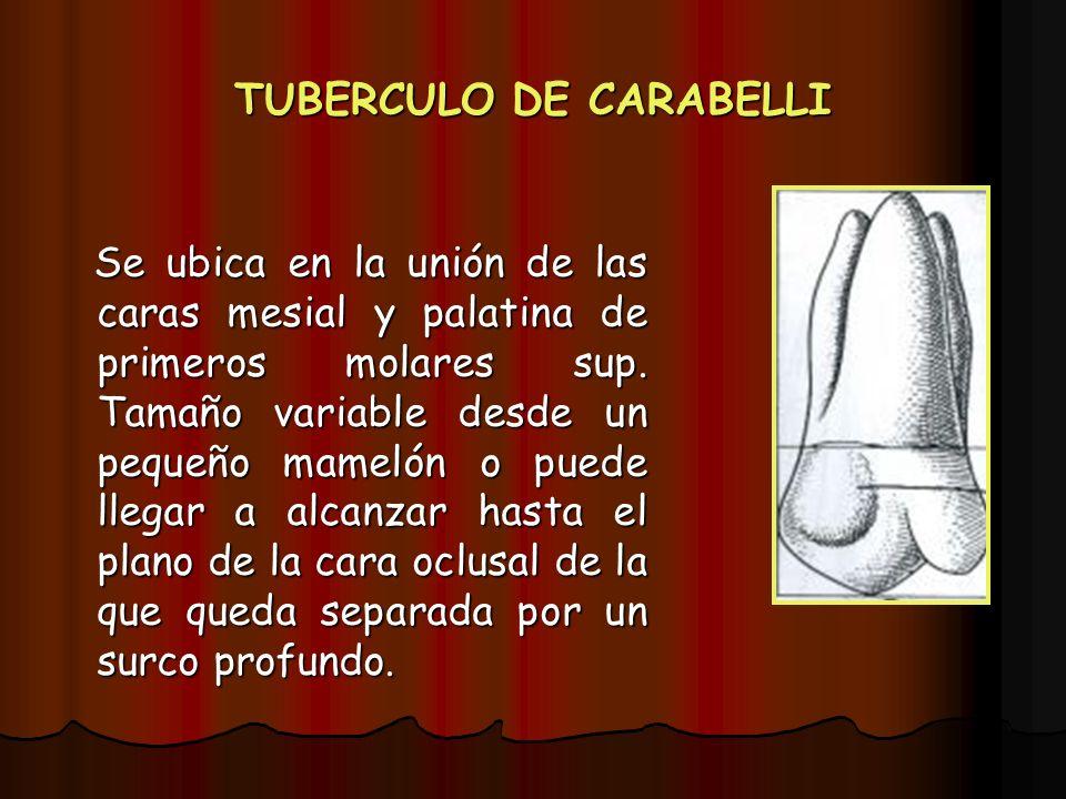 TUBERCULO DE CARABELLI Se ubica en la unión de las caras mesial y palatina de primeros molares sup. Tamaño variable desde un pequeño mamelón o puede l