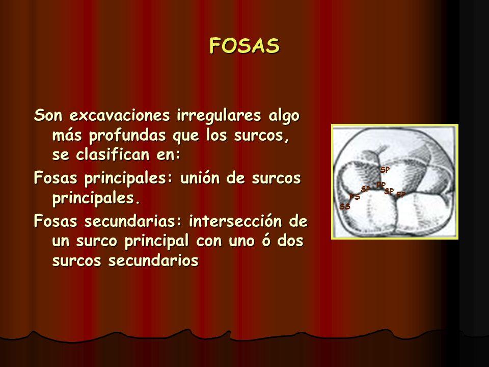 FOSAS Son excavaciones irregulares algo más profundas que los surcos, se clasifican en: Fosas principales: unión de surcos principales. Fosas secundar