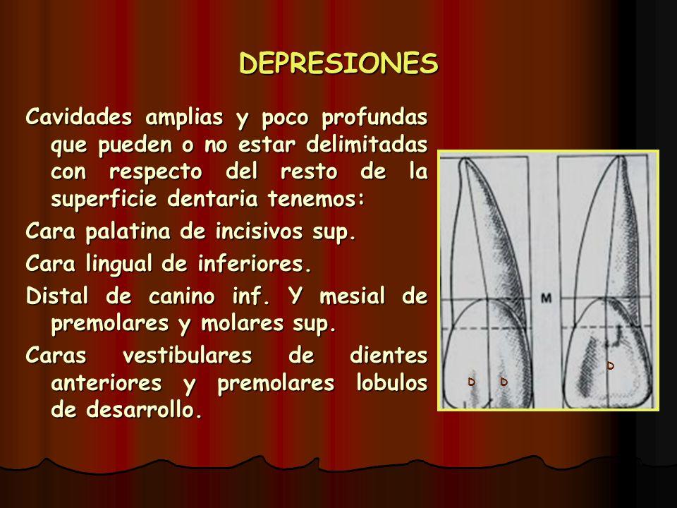 DEPRESIONES Cavidades amplias y poco profundas que pueden o no estar delimitadas con respecto del resto de la superficie dentaria tenemos: Cara palati