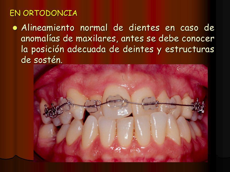 EN ORTODONCIA Alineamiento normal de dientes en caso de anomalías de maxilares, antes se debe conocer la posición adecuada de deintes y estructuras de
