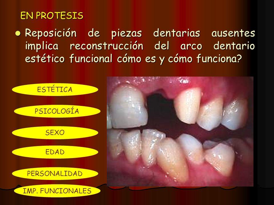 EN PROTESIS Reposición de piezas dentarias ausentes implica reconstrucción del arco dentario estético funcional cómo es y cómo funciona? Reposición de