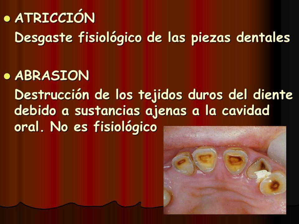 ATRICCIÓN ATRICCIÓN Desgaste fisiológico de las piezas dentales ABRASION ABRASION Destrucción de los tejidos duros del diente debido a sustancias ajen