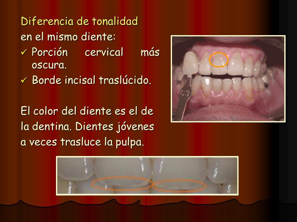Diferencia de tonalidad en el mismo diente: Porción cervical más oscura. Porción cervical más oscura. Borde incisal traslúcido. Borde incisal traslúci