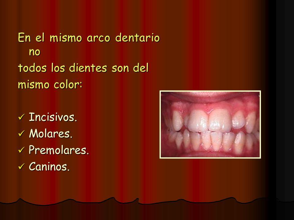 En el mismo arco dentario no todos los dientes son del mismo color: Incisivos. Incisivos. Molares. Molares. Premolares. Premolares. Caninos. Caninos.