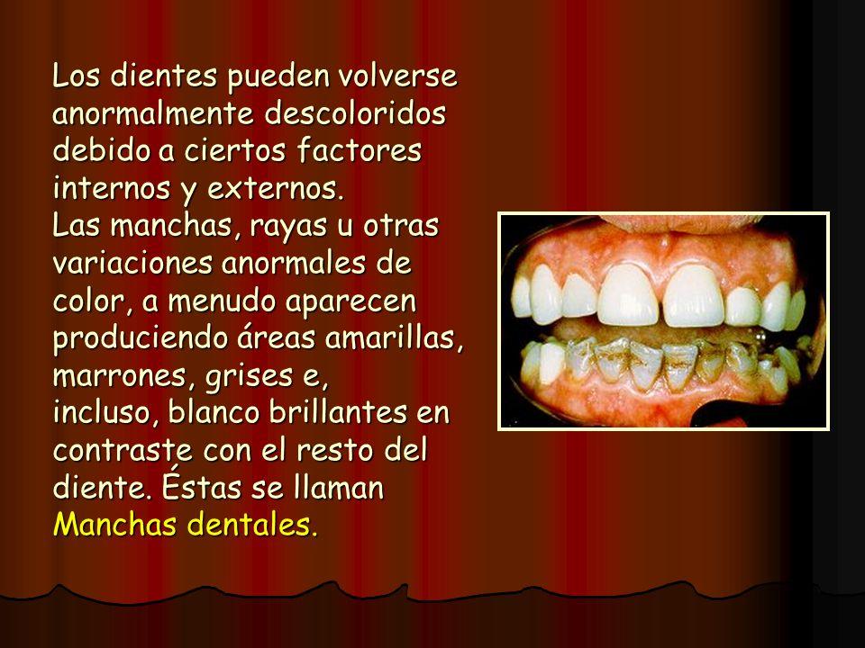 Los dientes pueden volverse anormalmente descoloridos debido a ciertos factores internos y externos. Las manchas, rayas u otras variaciones anormales