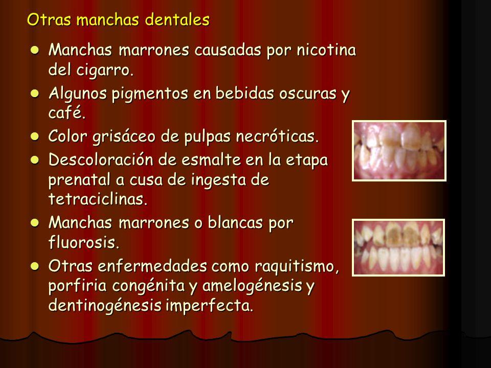 Otras manchas dentales Manchas marrones causadas por nicotina del cigarro. Manchas marrones causadas por nicotina del cigarro. Algunos pigmentos en be
