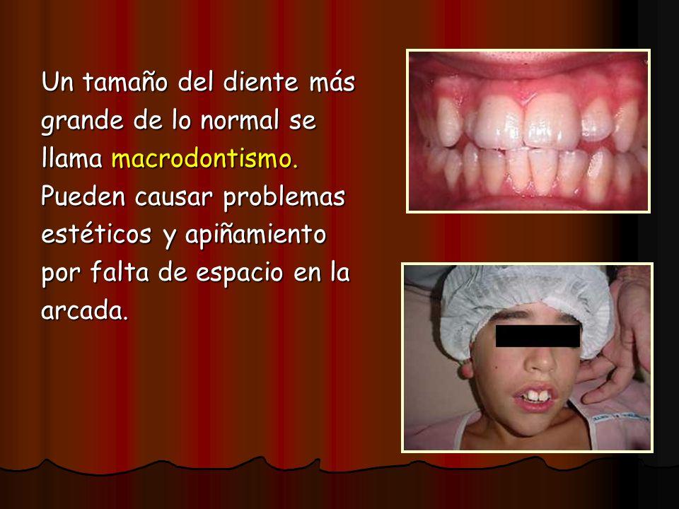 Un tamaño del diente más grande de lo normal se llama macrodontismo. Pueden causar problemas estéticos y apiñamiento por falta de espacio en la arcada