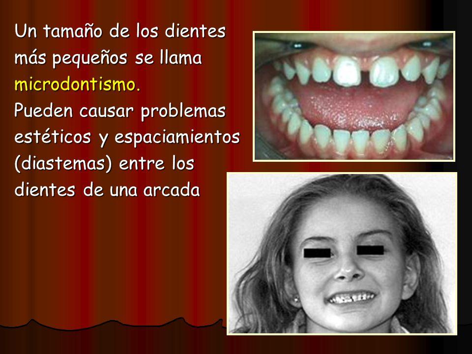 Un tamaño de los dientes más pequeños se llama microdontismo. Pueden causar problemas estéticos y espaciamientos (diastemas) entre los dientes de una