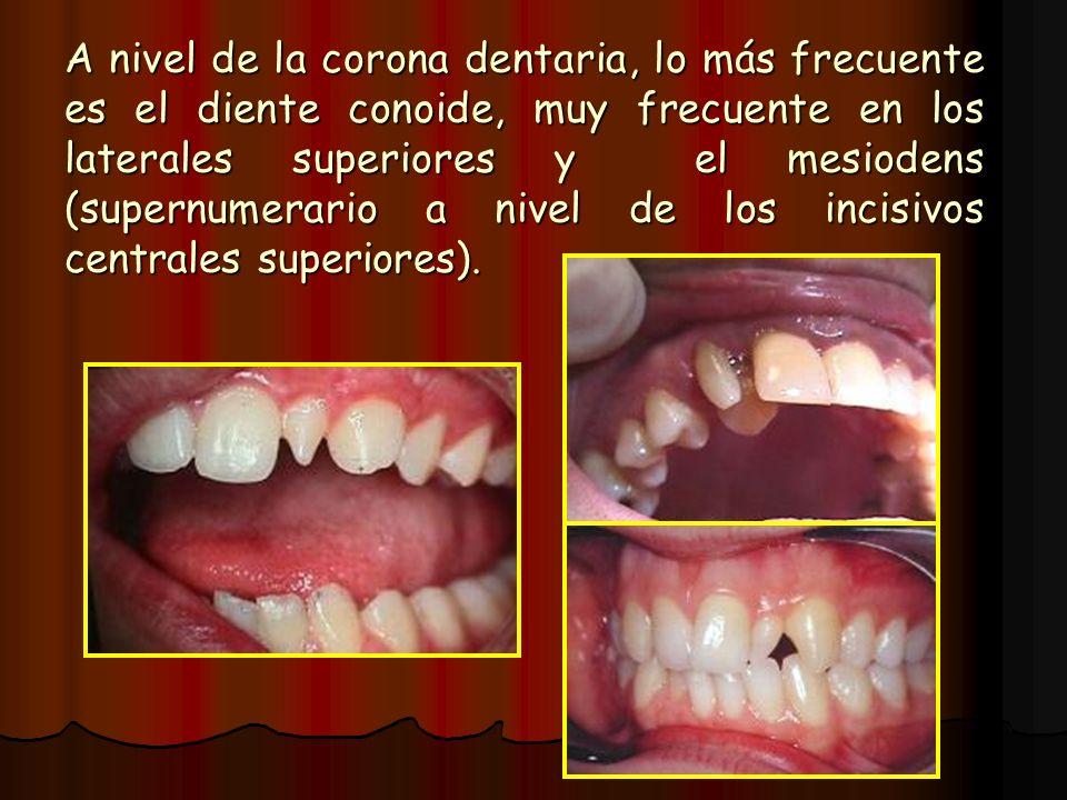 A nivel de la corona dentaria, lo más frecuente es el diente conoide, muy frecuente en los laterales superiores y el mesiodens (supernumerario a nivel