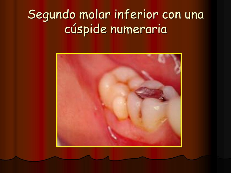 Segundo molar inferior con una cúspide numeraria