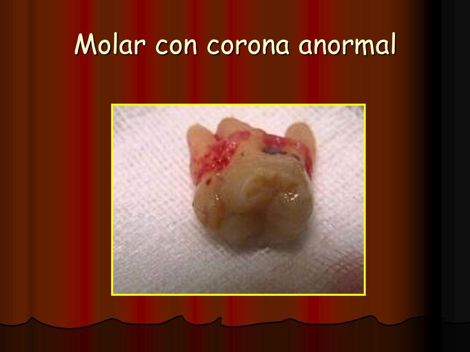 Molar con corona anormal