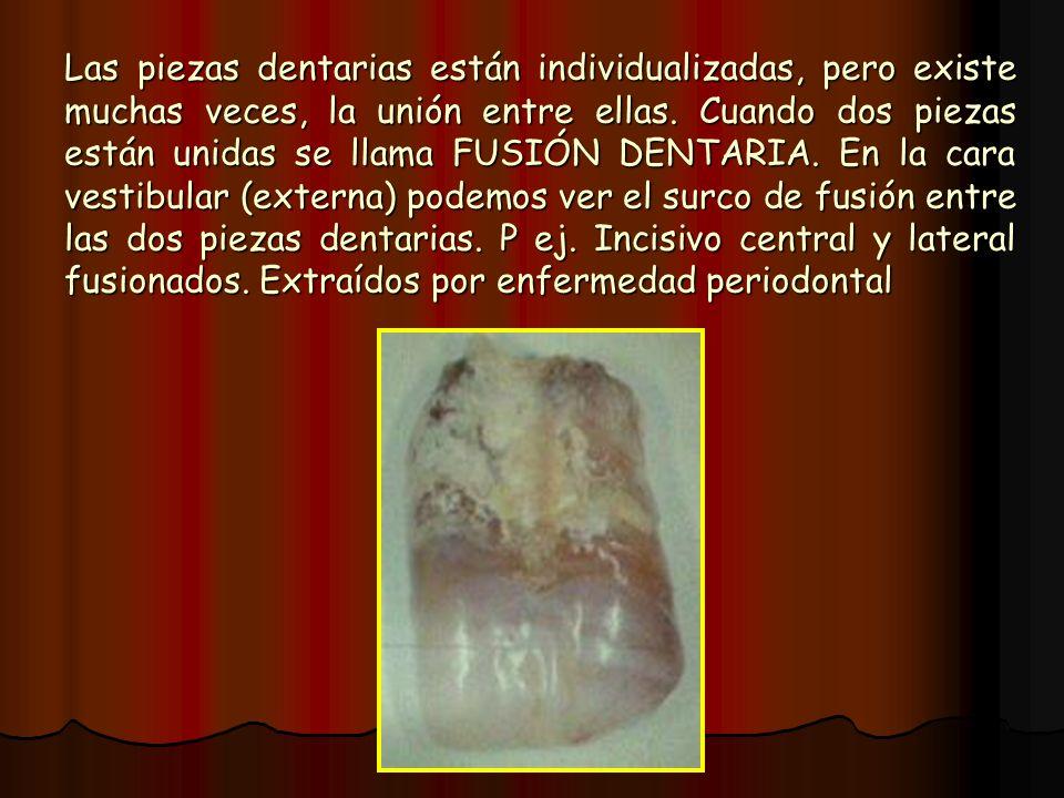 Las piezas dentarias están individualizadas, pero existe muchas veces, la unión entre ellas. Cuando dos piezas están unidas se llama FUSIÓN DENTARIA.