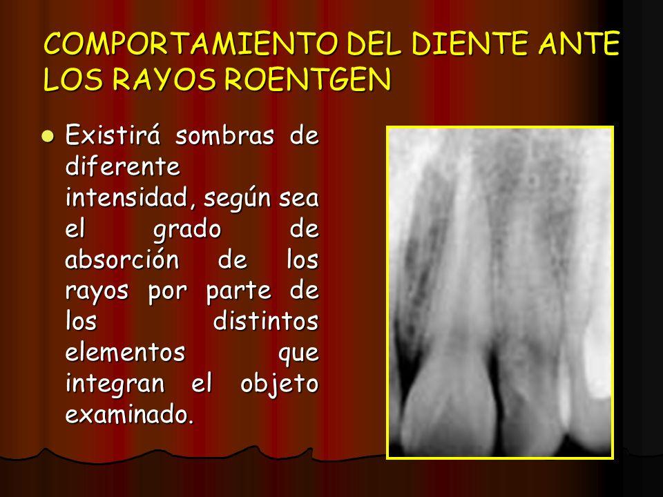 COMPORTAMIENTO DEL DIENTE ANTE LOS RAYOS ROENTGEN Existirá sombras de diferente intensidad, según sea el grado de absorción de los rayos por parte de