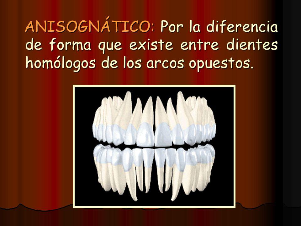 ANISOGNÁTICO: Por la diferencia de forma que existe entre dientes homólogos de los arcos opuestos. ANISOGNÁTICO: Por la diferencia de forma que existe