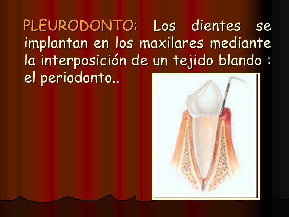 PLEURODONTO: Los dientes se implantan en los maxilares mediante la interposición de un tejido blando : el periodonto.. PLEURODONTO: Los dientes se imp