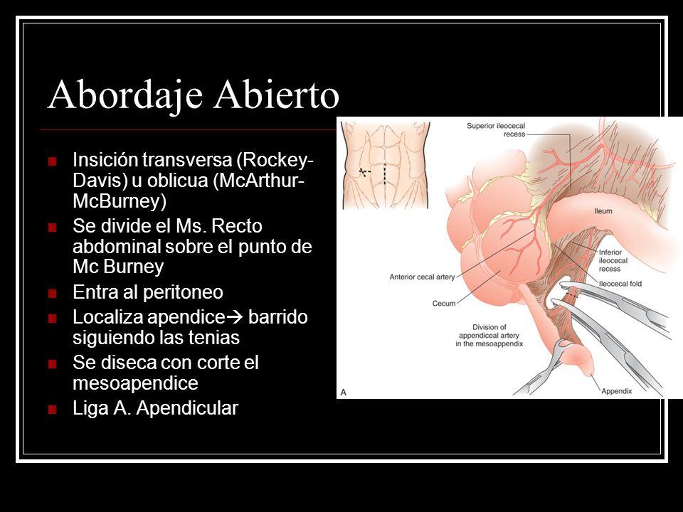 Abordaje Abierto Insición transversa (Rockey- Davis) u oblicua (McArthur- McBurney) Se divide el Ms. Recto abdominal sobre el punto de Mc Burney Entra