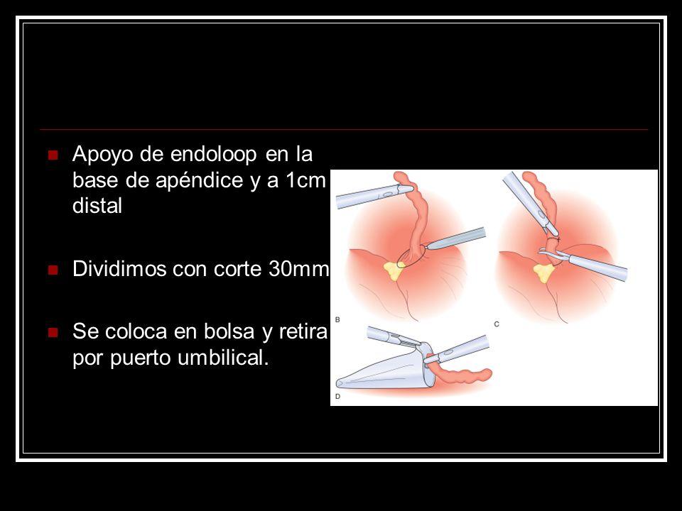 Apoyo de endoloop en la base de apéndice y a 1cm distal Dividimos con corte 30mm Se coloca en bolsa y retira por puerto umbilical.