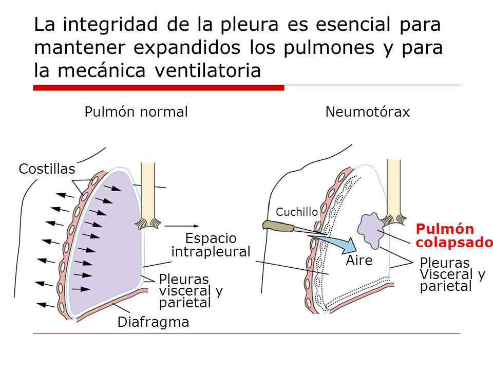 Cuchillo Pulmón colapsado Pleuras Visceral y parietal Aire Neumotórax Diafragma Costillas Pleuras visceral y parietal Espacio intrapleural Pulmón norm