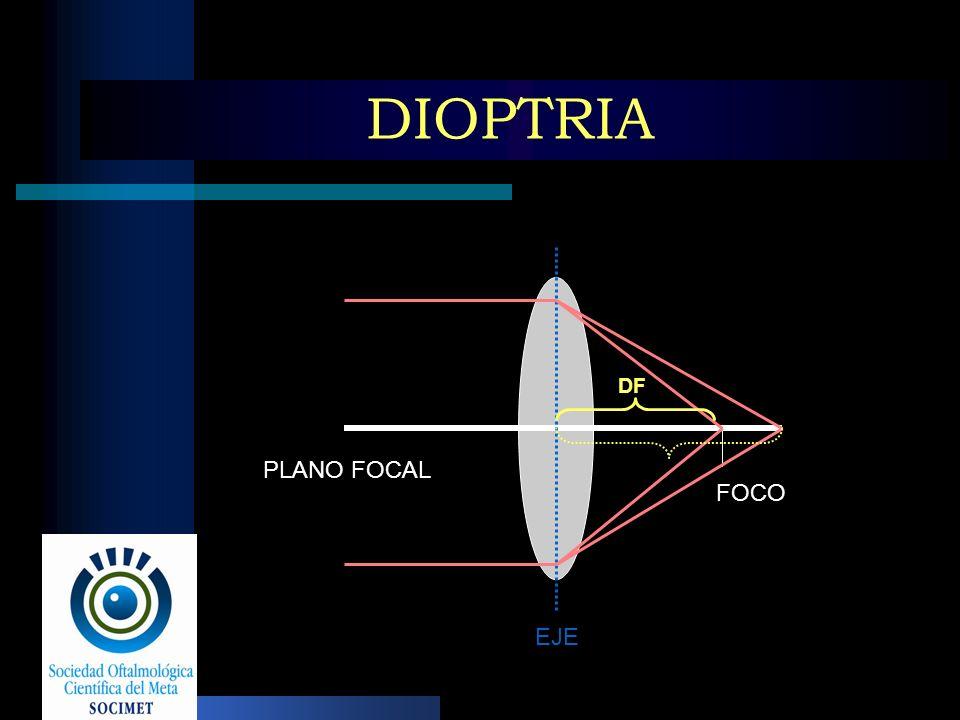 DIOPTRIA PLANO FOCAL EJE FOCO DF